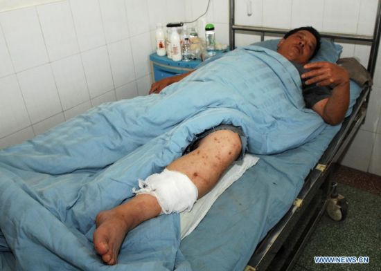 Wang Xianze, a passenger injured in a traffic accident, receives medical treatment at a hospital in Jingbian County, northwest China's Shaanxi Province, Aug. 26, 2012. The death toll from the expressway collision between a 39-seat bus and a methanol-loaded tanker in Yan'an City, Shaanxi Province, has risen to 36. The accident happened at around 2 a.m. on Sunday, when the double-decker sleeper bus crashed into the tanker and caught fire. Only three out of the 39 people on board the bus survived, but they all suffered injuries. (Xinhua/Li Yibo)