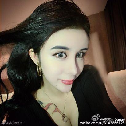 Li after the plastic surgeries.